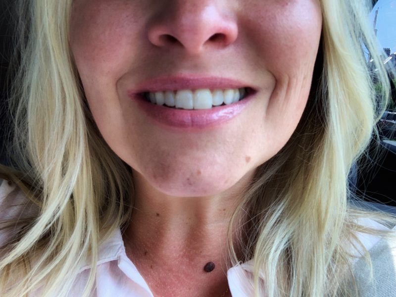 how a chipped tooth taught me to take time for myself